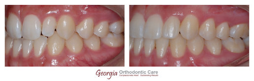 Orthodontic treatment, close spaces, composite, tooth colored, fillings, veneers,  orthodontist, cosmetic dentistry, Georgia Orthodontic 