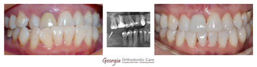 Underbite correction, TAD, Mini screw implant, Orthodontics, orthodontists, Clear, Invisible, Braces, Invisalign, underbite,class 