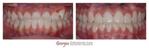 Underbite, Teeth underbite, skeletal underbite, under bite, coorection, no surgery, no extraction, Orthodontics, orthodontists, Clear, 
