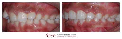 Ectopic eruption, teeth, phase I, early treatment, Orthodontics, orthodontists, Clear, Invisible, Braces, Invisalign, underbite,class 