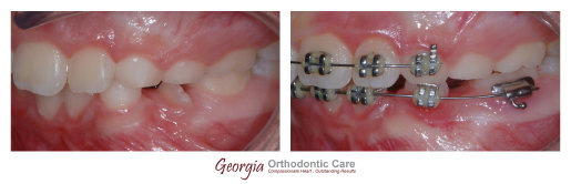 migrated teeth, blocked teeth, Orthodontics, orthodontists, Clear, Invisible, Braces, Invisalign, underbite,class III, face mask, 