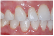 peg lateral incisor, orthodontics, orthodontist, cosmetic dentistry, lawrenceville, norcorss, ga 30043